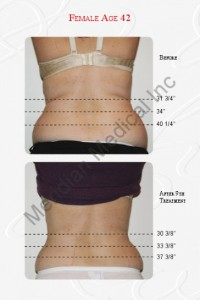 Weight loss treatment example
