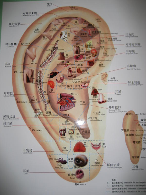 Auricular therapy weight loss program